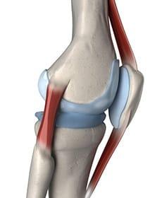 Patellar Instability Diagram